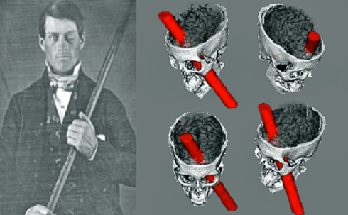 Phineas-Gage